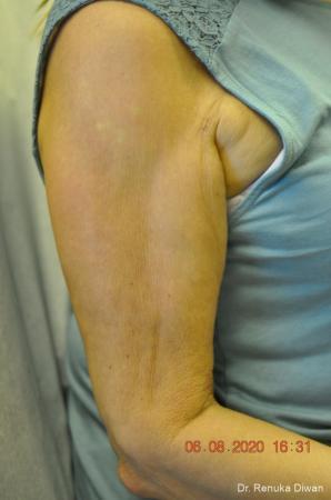 Skin Tightening: Patient 14 - Before Image 1