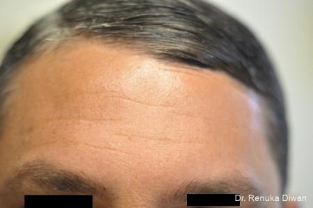 BOTOX® Cosmetic: Patient 16 - Before Image