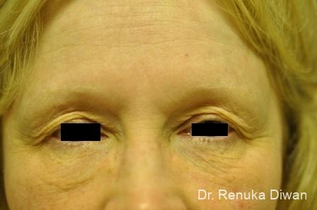Blepharoplasty: Patient 8 - Before Image 1