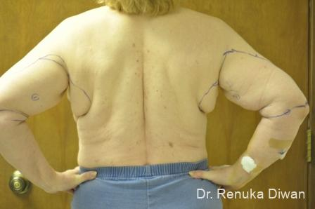 Liposuction: Patient 19 - Before and After Image 2