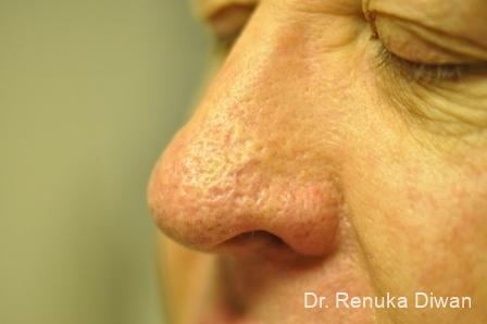 Laser For Veins And Redness For Men: Patient 2 - After Image 1