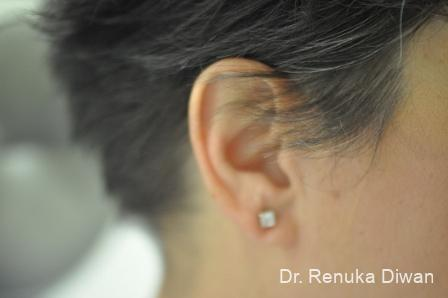 Earlobe Surgery: Patient 5 - After Image 2