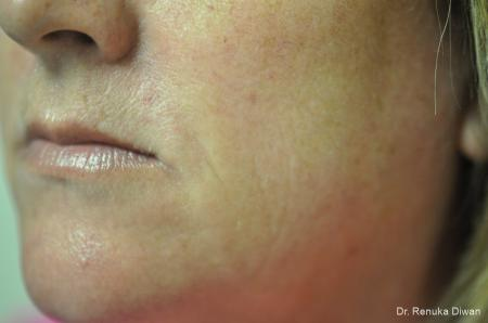 Microneedling: Patient 4 - After Image 2
