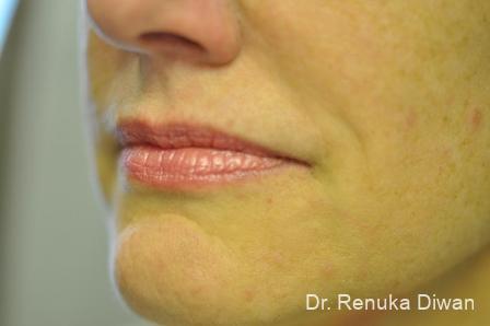 Smile Lines: Patient 1 - After Image 2