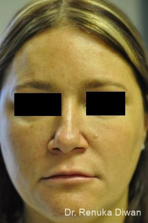 BOTOX® Cosmetic: Patient 27 - After Image 1