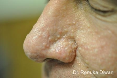 Laser-skin-resurfacing-for-men: Patient 1 - Before Image