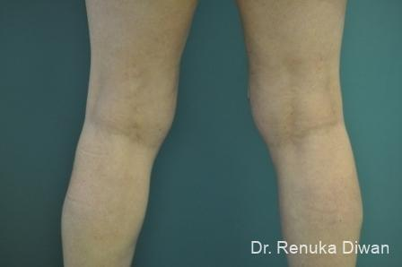 CoolSculpting®: Patient 3 - Before Image 1