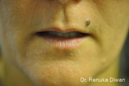 Laser For Veins And Redness: Patient 22 - After Image 1