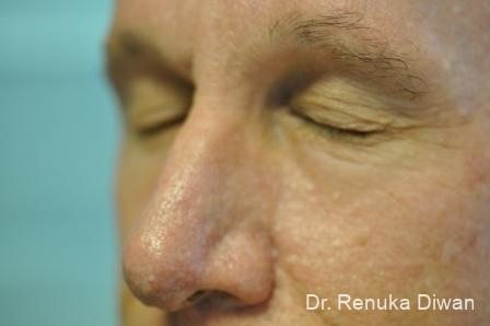 Laser-skin-resurfacing-for-men: Patient 1 - After Image