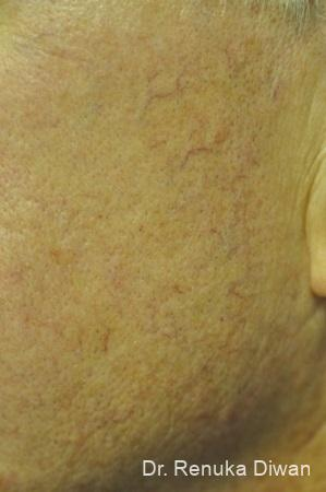 Laser For Veins And Redness: Patient 9 - Before and After Image 2