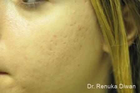 Laser Skin Resurfacing: Patient 4 - After Image 2