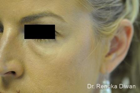 BOTOX® Cosmetic: Patient 23 - After Image 1