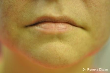 Lips And Mouth: Patient 12 - Before Image 1