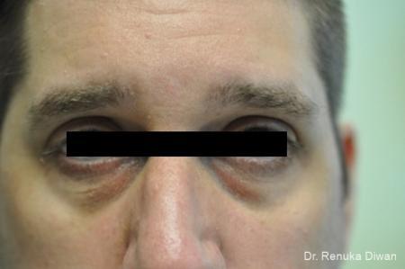Dark Circles: Patient 1 - Before Image 1
