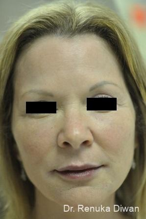 Non-Surgical Facelift: Patient 2 - After Image
