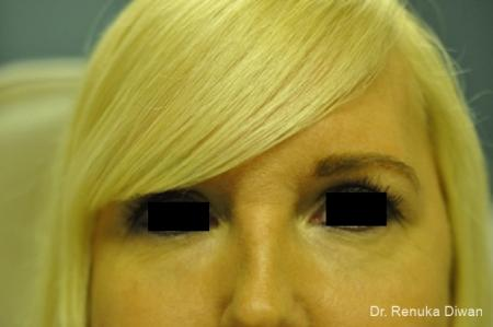Dark Circles: Patient 17 - After Image 1