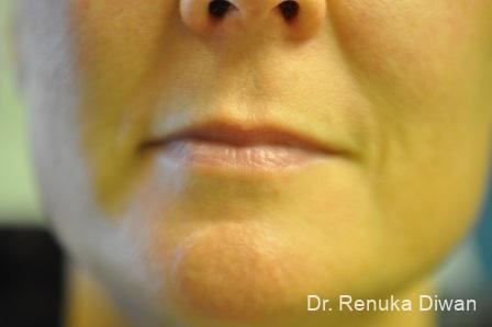 Lips And Mouth: Patient 18 - Before Image 1