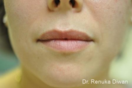Lips And Mouth: Patient 15 - Before Image 1