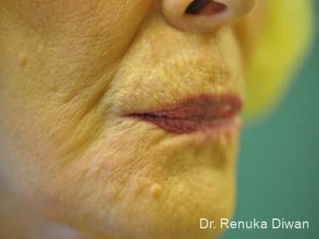 Lips And Mouth: Patient 8 - After Image