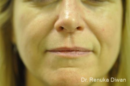 Smile Lines: Patient 5 - Before Image
