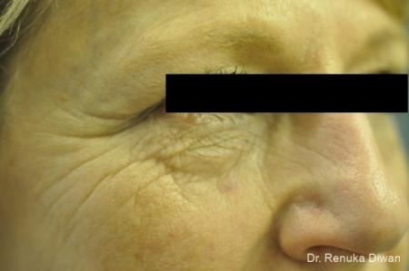 Microneedling: Patient 1 - Before and After Image 2
