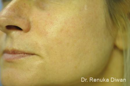 Lasers For Brown Spots: Patient 11 - After Image 2