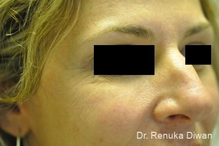 BOTOX® Cosmetic: Patient 20 - After Image