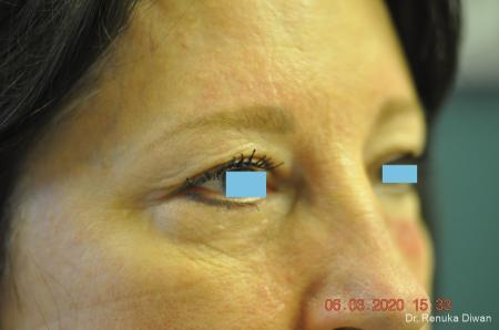 Blepharoplasty: Patient 3 - Before Image 2