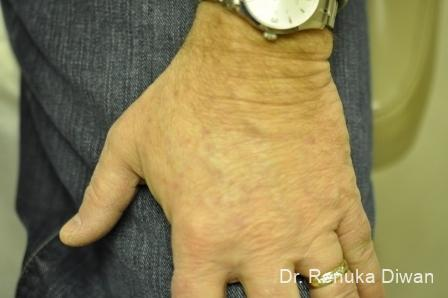 Lasers-for-brown-spots-for-men: Patient 1 - After Image