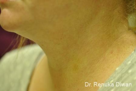 Neck Creases: Patient 1 - After Image 2