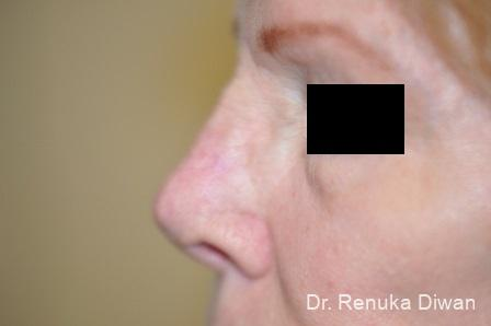 Non-Surgical Rhinoplasty: Patient 1 - After Image 2