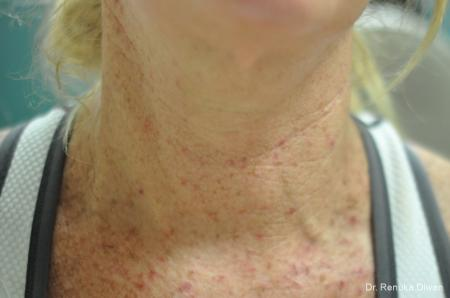 Skin Tightening: Patient 11 - Before Image 1