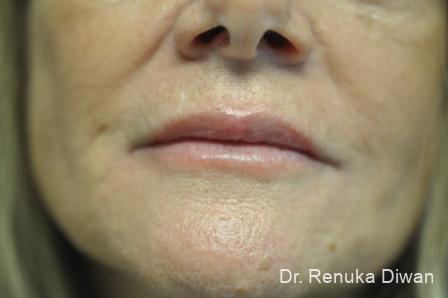 Lips And Mouth: Patient 14 - After Image 1