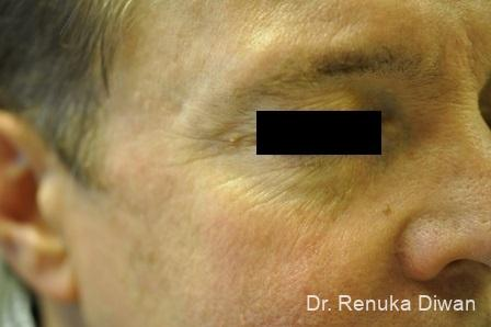 Botox-cosmetic-for-men: Patient 6 - Before Image