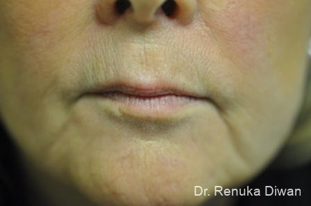 Lips And Mouth: Patient 1 - Before Image