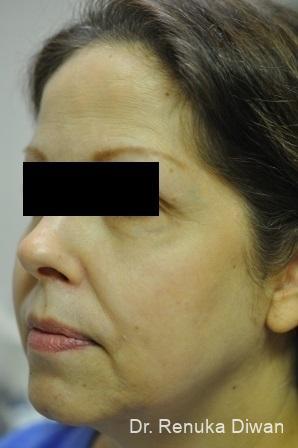 Skin Tightening: Patient 1 - Before Image