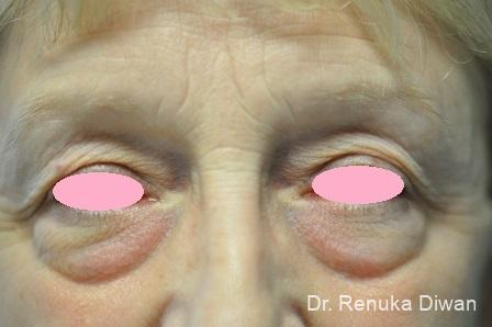 Blepharoplasty: Patient 4 - Before Image 1