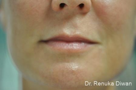 Lips And Mouth: Patient 18 - After Image 1