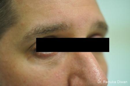 Dark Circles: Patient 1 - After Image 2
