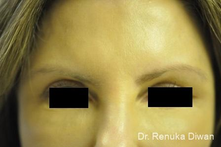 Loss Of Fullness: Patient 10 - After Image