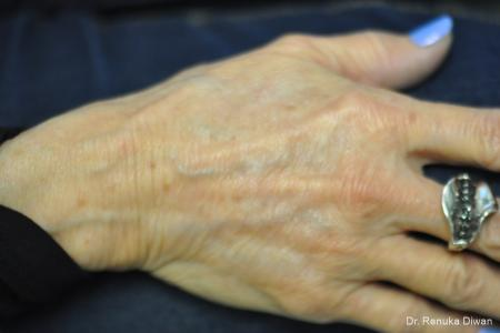 Hand Augmentation: Patient 2 - After Image 1