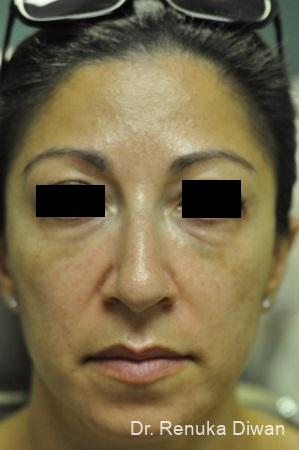 Loss Of Fullness: Patient 11 - After Image