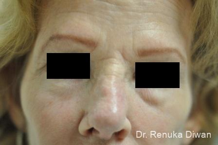 Non-Surgical Rhinoplasty: Patient 1 - After Image 3