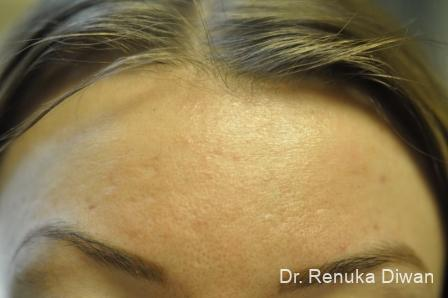 Laser Skin Resurfacing: Patient 4 - After Image