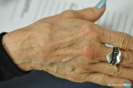 Hand Augmentation: Patient 1 - Before Image 1