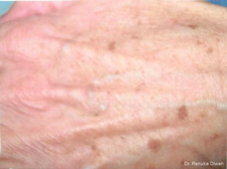 Lasers For Brown Spots: Patient 7 - Before Image 1