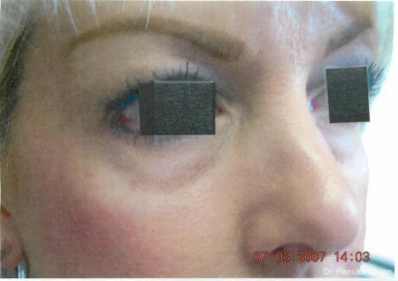 Dark Circles: Patient 11 - Before Image 1