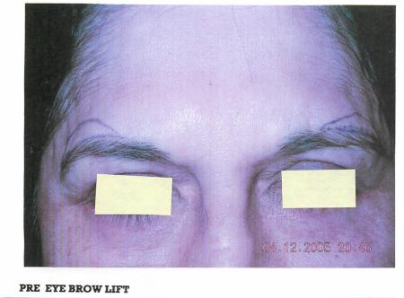 Brow Lift: Patient 1 - Before Image 1