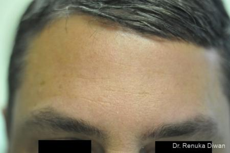 BOTOX® Cosmetic: Patient 16 - After Image