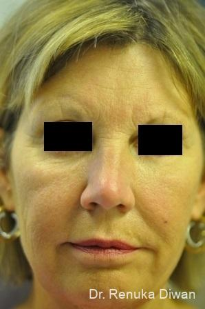 Loss Of Fullness: Patient 9 - Before Image 1